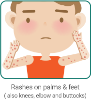 Rashes on palms & feet (also knees, elbow and buttocks)